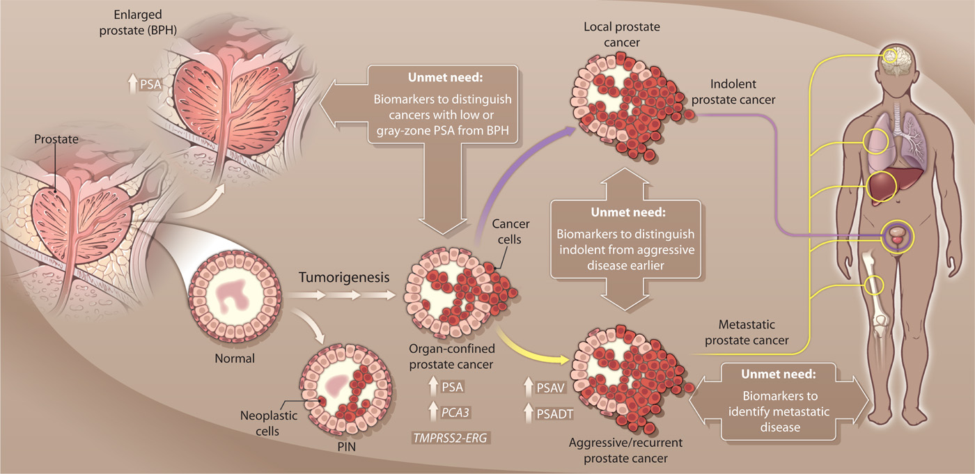 Нужны новые биомаркеры рака предстательной железы