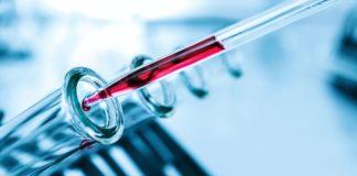 Щелочная фосфатаза: повышенный уровень и способы уменьшения