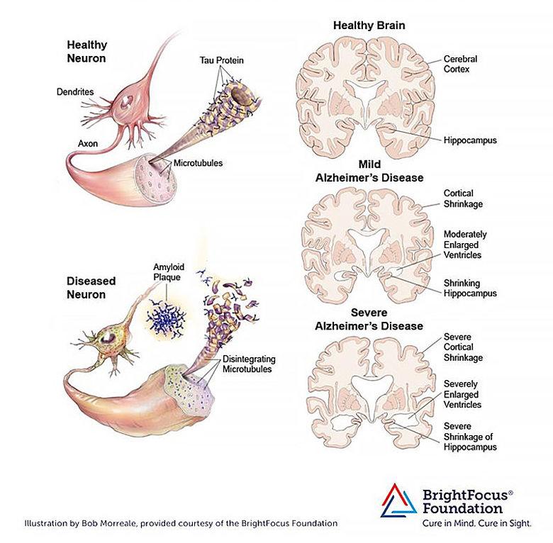 Прогрессирование болезни Альцгеймера