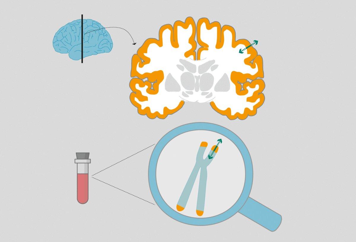 Старение приводит к уменьшению толщины коры головного мозга