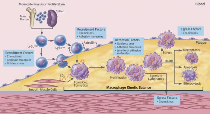 Макрофаги способствуют развитию атеросклероза