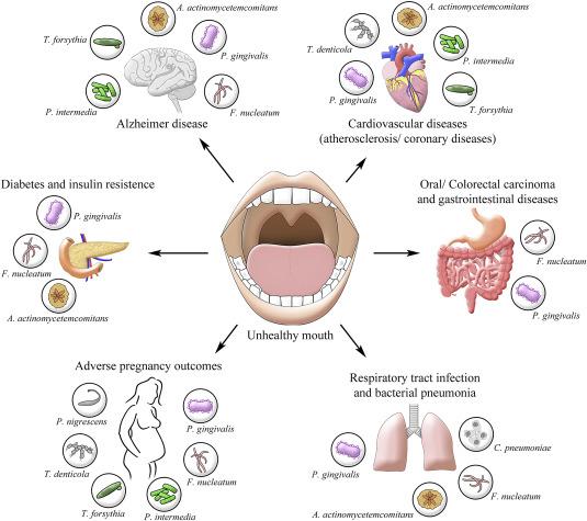 Пародонтит приводит к развитию хронических заболеваний