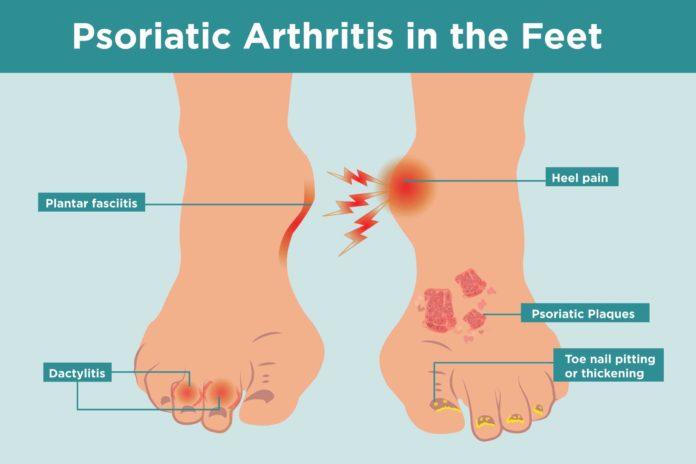 Псориатический артрит поражает ступни ног