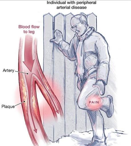Атеросклероз нижних конечностей не дает длительно ходить