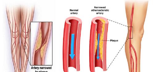 Атеросклероз является основой заболевания артерий нижних конечностей