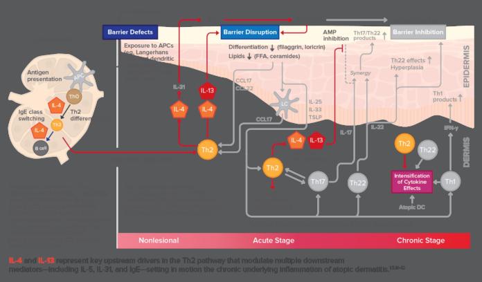 Лечение экземы основывается на подавлении цитокинов IL-4 и IL-13
