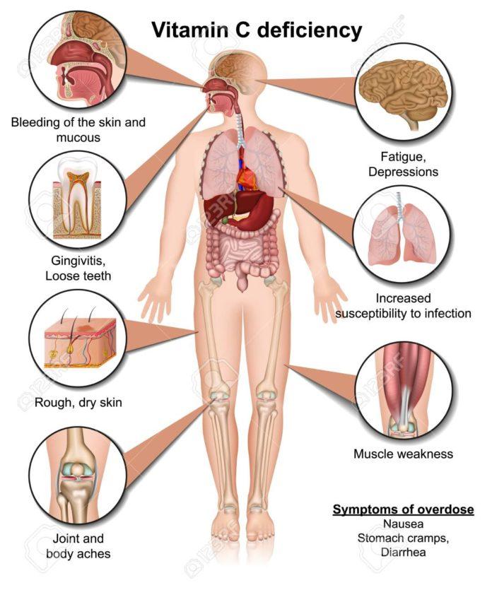Дефицит витамина С серьезно влияет на наш организм