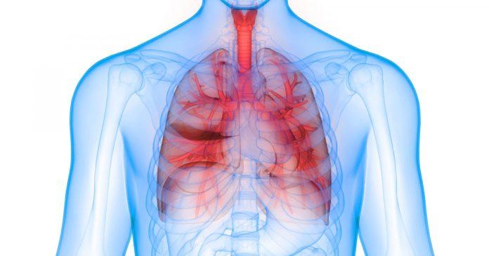 Ген CYP1A1 при пневмонии