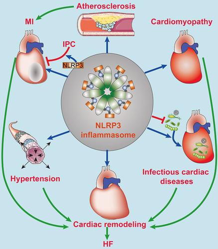 NLRP3 инфламмасома способствует развитию хронических заболеваний.