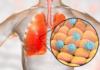 Мелатонин может помочь в лечении инфекции коронавирусом COVID-19