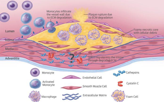 Цистатин С ухудшает течение атеросклероза
