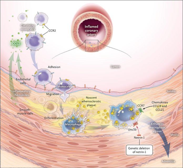 Моноциты участвуют в развитии атеросклероза