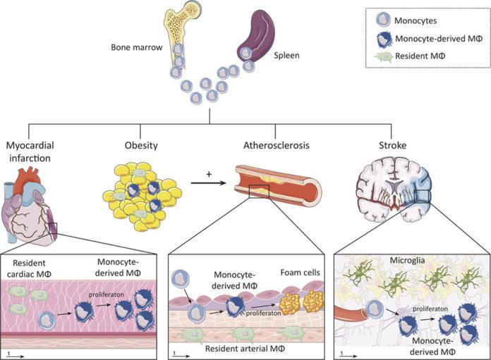 Повышенный уровень моноцитов связан с сердечно-сосудистыми заболеваниями