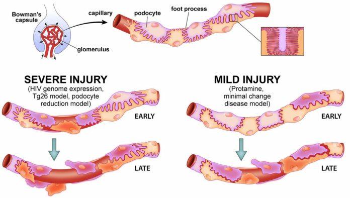 При болезнях почек происходит нарушения в работе подоцитов.