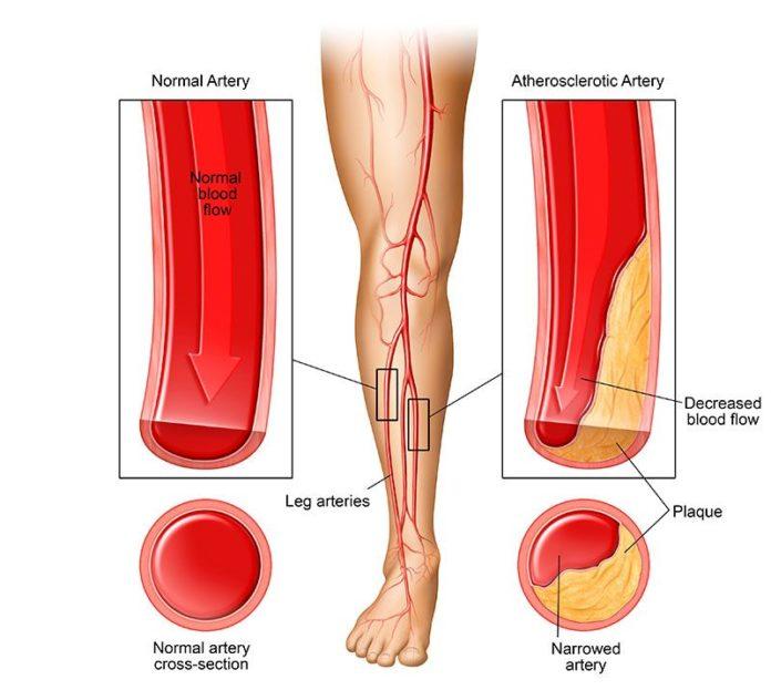 Атеросклероз приводит к заболеванию периферических сосудов