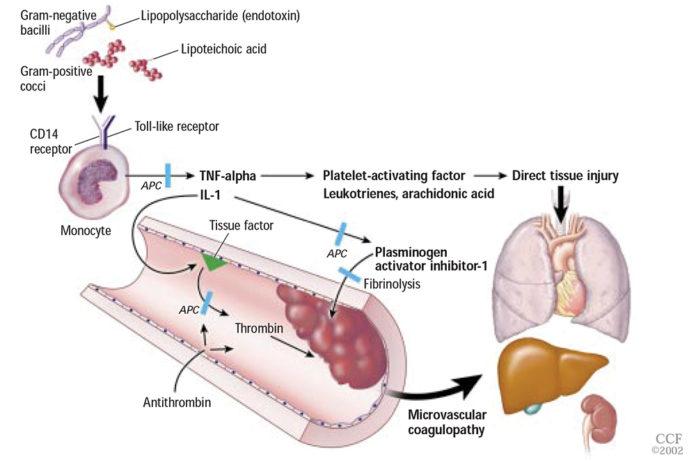 Фактор некроза опухоли при сепсисе