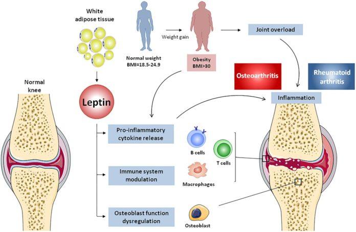 Лептин увеличивает воспаление при ревматоидном артрите и остеоартрите