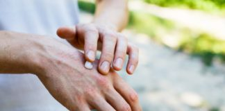 Псориаз: причины, признаки и лечение