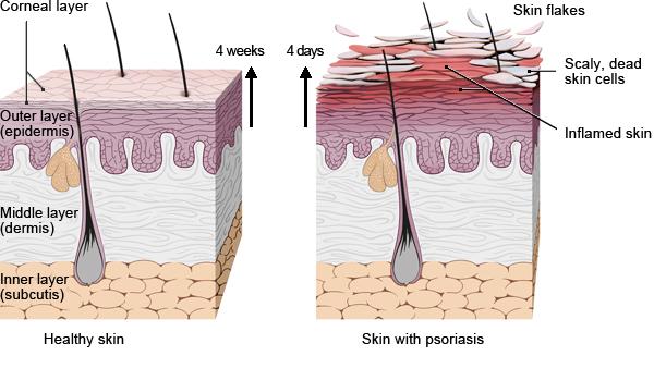 Рост клеток кожи при псориазе