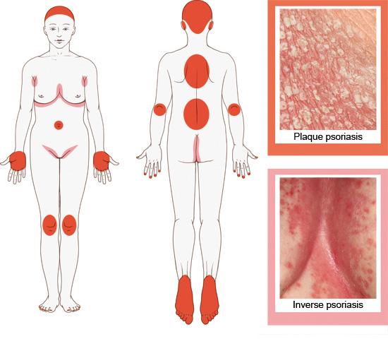 Расположение псориатических бляшек на коже