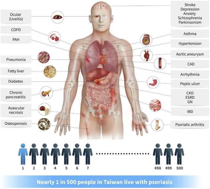 Осложнения при псориазе