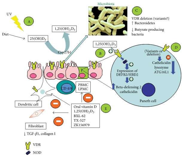 Витамин D может помогать при синдроме раздраженного кишечника
