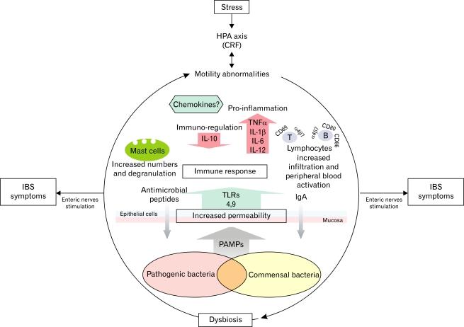 Синдром раздраженного кишечника: модель развития