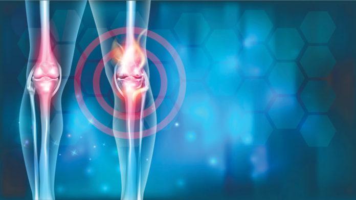 Остеоартроз - дегенеративное заболевание суставов