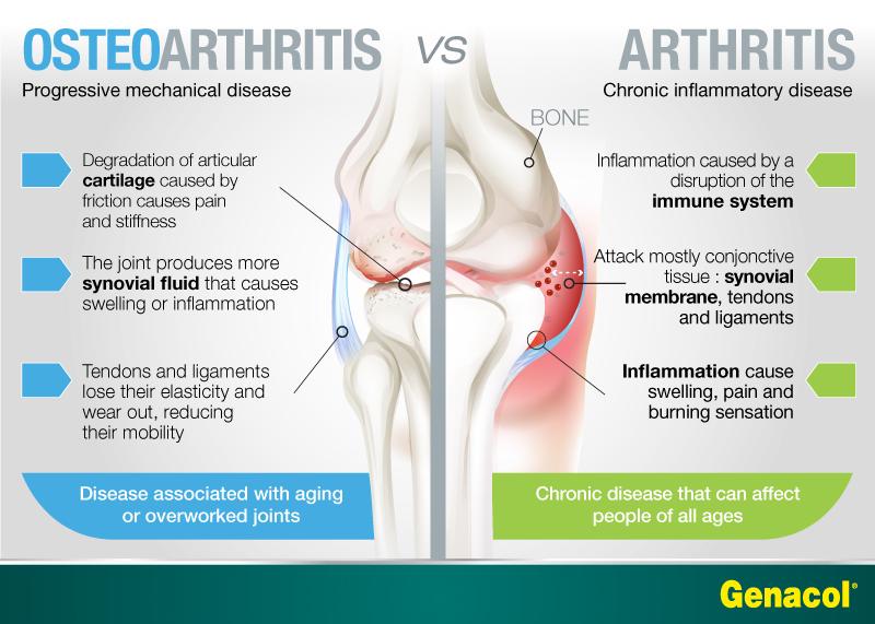 Остеоартроз отличается от ревматоидного артрита