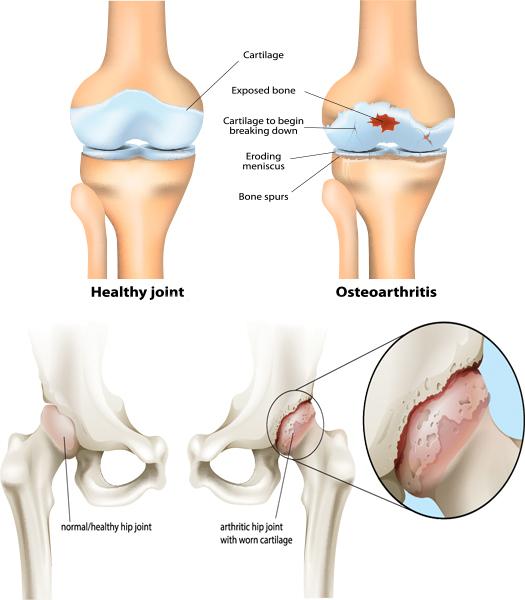 Остеоартроз разрушает сустав