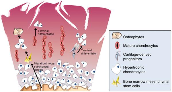 Остеоартроз и гипертрофия хондроцитов