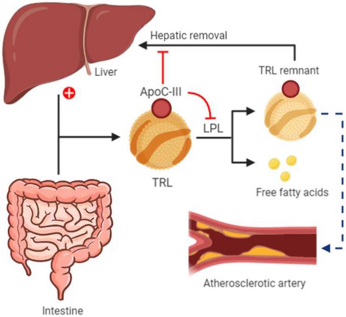 аполипопротеин С3 может способствовать атеросклерозу
