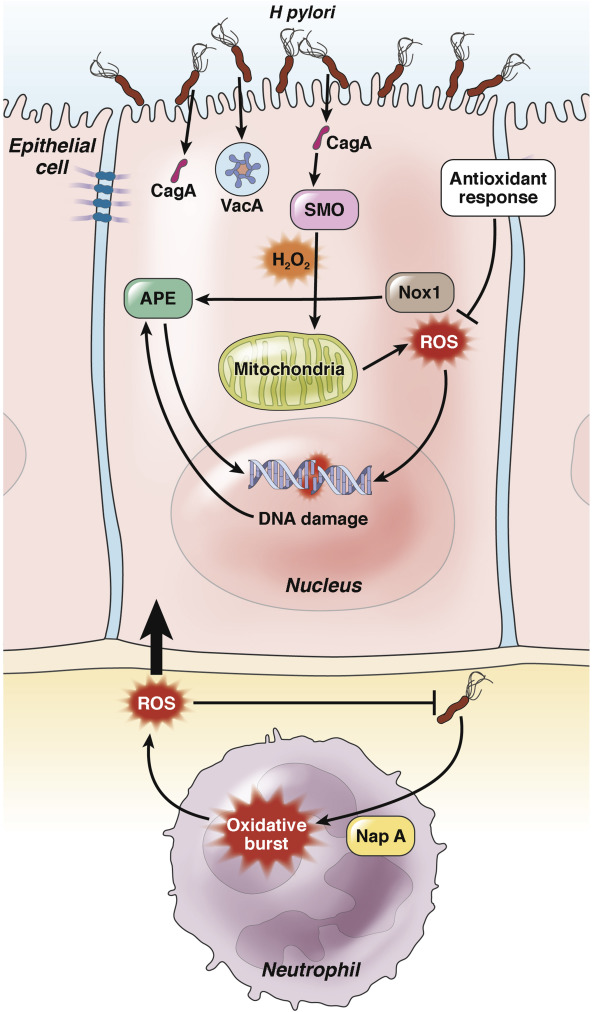 Гастрит и рак желудка может возникнуть под влиянием инфекции