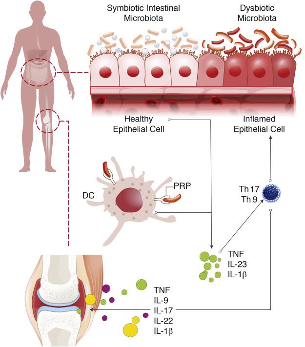 Псориатический артрит и дисбактериоз кишечника