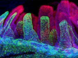 Ген NOD2 в кишечнике