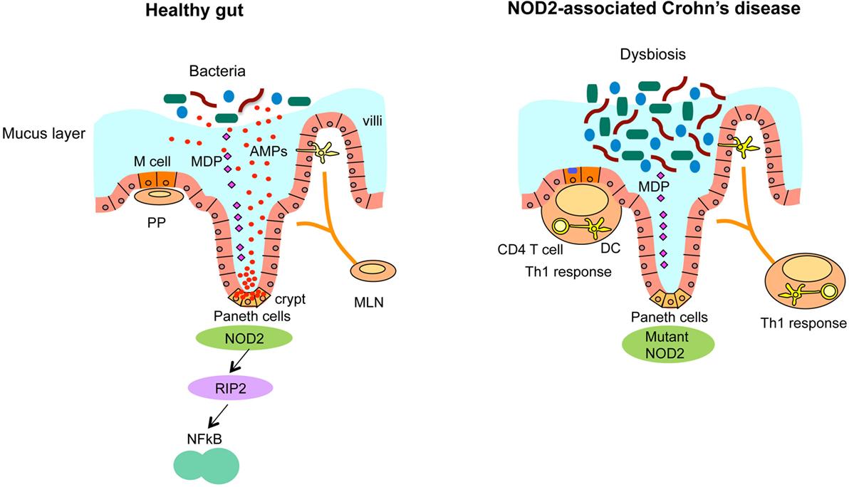 Ген NOD2 связан с болезнью Крона