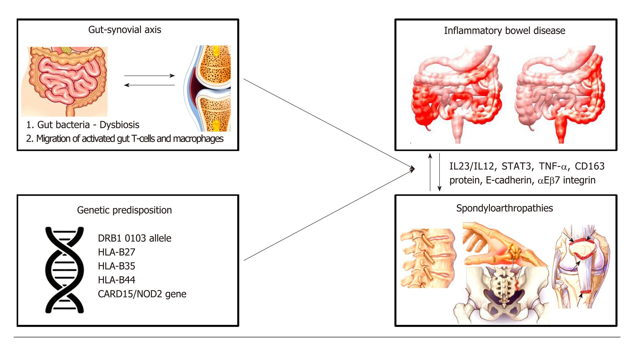 Связь гена NOD2 и болезни Крона с воспалительными заболеваниями суставов